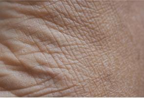Как убрать морщины на лице?