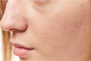 Как убрать пятна от прыщей на лице?