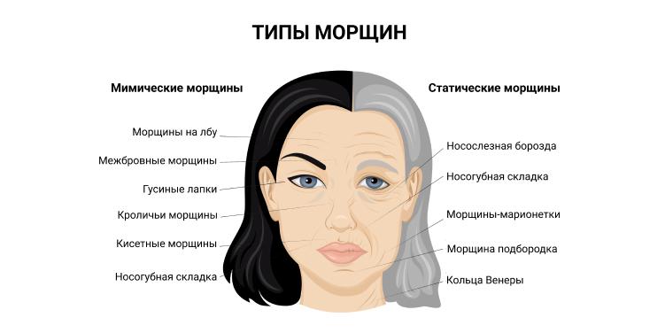 Схема расположения статических и мимических морщин на лице