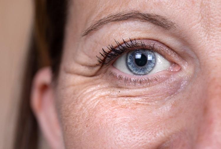 Морщины - это следствие естественного старения